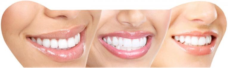 تبييض الأسنان في تركيا 5