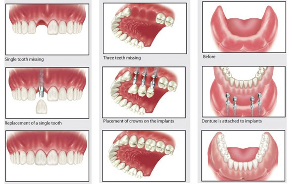 Details Of أنواع زراعة الاسنان تركيا اسطنبول تركيا ادويت